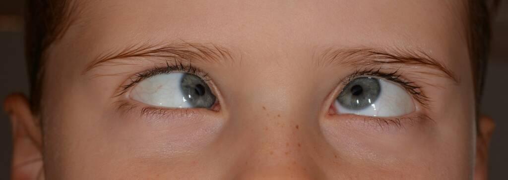 Kontaktlinsen und Schielen